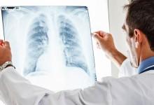 Опасная болезнь отступает: в Минздраве рассказали о снижении уровня смертности от пневмонии.